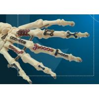 Buy cheap Titanium Bone Plate for Hand Repair and Reconstruction product