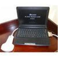 Buy cheap High - Resolution LCD Digital Mobile Ultrasonic / Laptop Portable Ultrasound from wholesalers