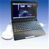 Buy cheap Laptop Ultrasound Scanner with Convex + Linear + Transvaginal + Micro Convex from wholesalers