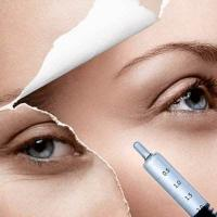 China Safe Pure Hyaluronic Acid Gel Filler Injection for Removing Glabellar Frown Lines on sale