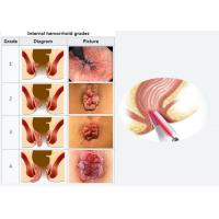 China Dimed Hemorrhoid Laser Surgery Noninvasive Laser Procedure For Homerrhoid Patients on sale