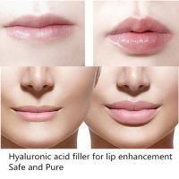 Buy cheap New Sexy Fuller Lips Injection of Hyaluronic Acid Filler Gel 2ml of Deep Kind product