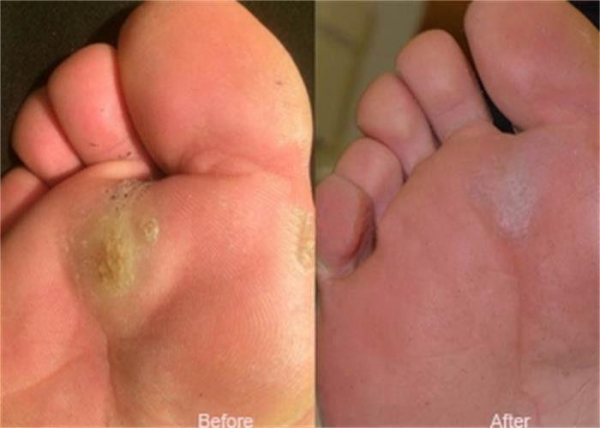 Quality Laser Treatment Equipment For Plantar Callus Removal / Corn And Callus Treatment for sale